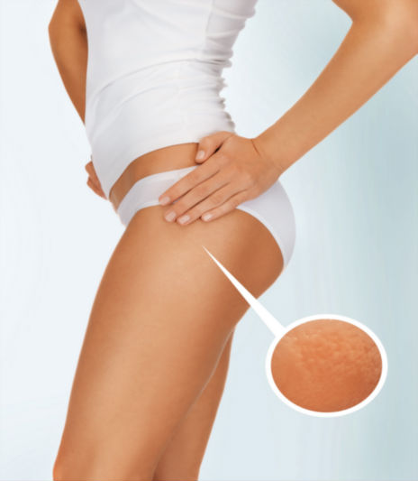 Cellulaze treatment