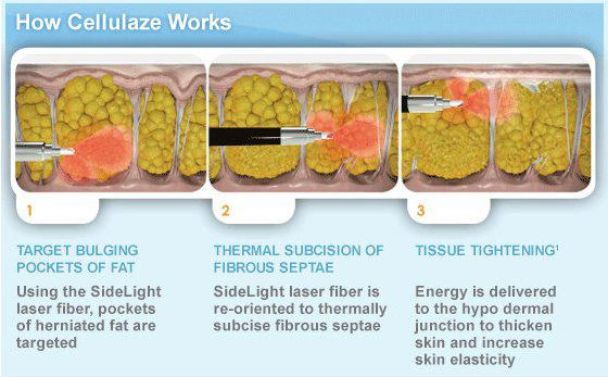 A true breakthrough in cellulite treatment services, Cellulaze from Cynosure is the only treatment that attacks the structural problems beneath the skin that cause cellulite.