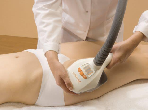 VelaShape procedure2