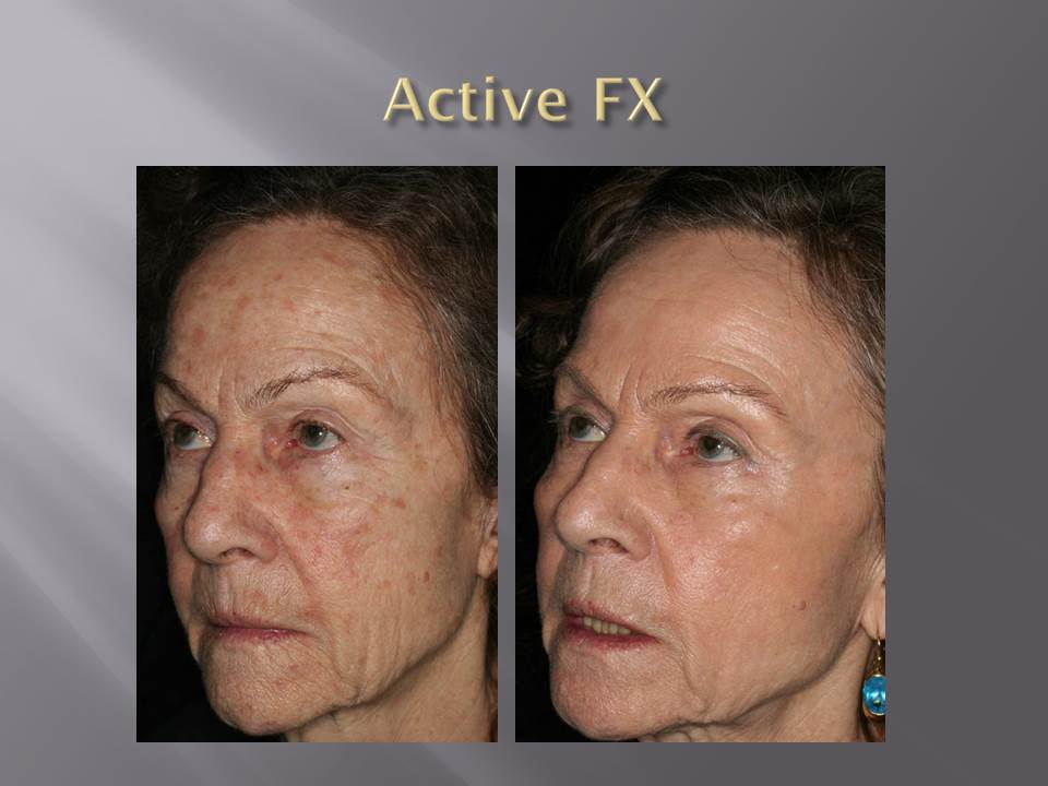 Fractional CO2, Active FX - Before and After by AcuPulse , LUMENIS.