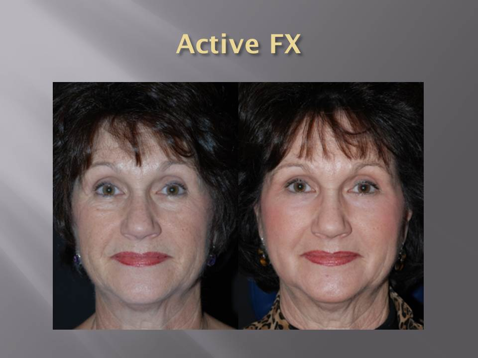 Fractional CO2 Active FX - Before and After by AcuPulse - LUMENIS.