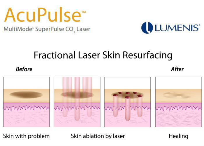 fractional c02 laser resurfacing