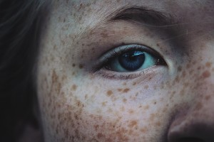 "Freckles, Lentigo (one freckle) or Lentigenes (multiple freckles) are the result of sun exposure; Solar Lentigenes, also known as ""sun spots,"" ""age spots"" and ""liver spots,"" are also caused by sun exposure."