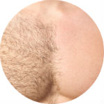 Hair removal 150x150