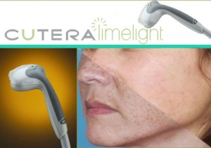 Cutera LimeLight: Intelligent Pulsed Light to treat hyperpigmentation