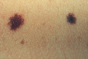 "Nevus, (also known as ""birthmark,"" ""mole"" or ""beauty mark,"") is the medical term for a congenital growth or mark on the skin."