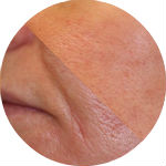 enlarged pores 150x150