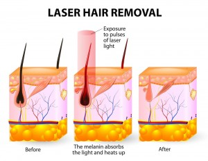 Hair Removal For Women & Men with CoolGlide Laser Technology