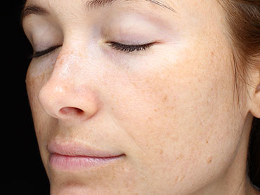 VISIA Natural light: The Standard Photo represents how your complexion typically looks in normal daylight and provides a good reference and comparison for the other image types.. You can view visible features and coloration on the surface of the skin.