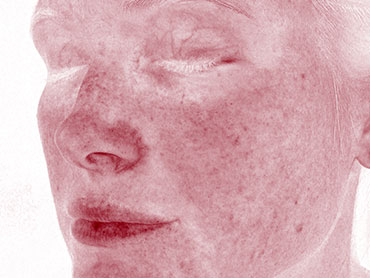 Red Areas can represent a variety of conditions, such as acne, inflammation, rosacea or spider veins. Blood vessels and hemoglobin contained in a sub-layer of skin, give these structures their red color, which is visualized by Canfield's RBX® Technology.