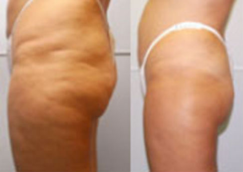 lipotron before and after