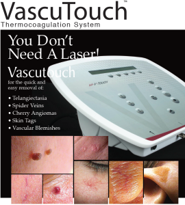 Vascutouch coagulates or melts off skin imperfections