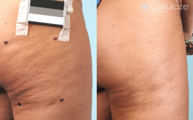 Cellulaze Anti Cellulite Treatment Spa Cielo Cabo